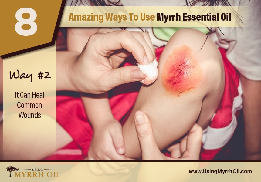 myrrh essential oil treatment